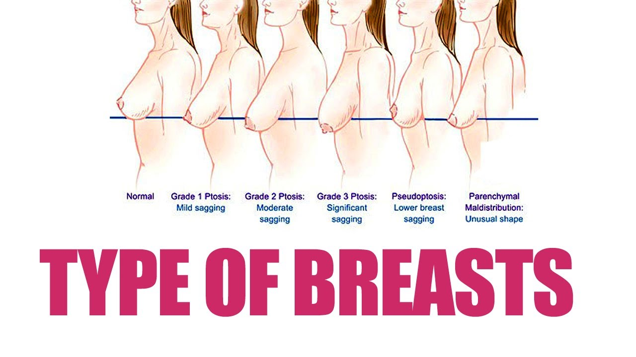 Different kinds of tits